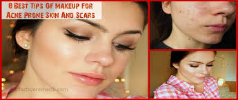 8 best tips of makeup for acne e skin and scars