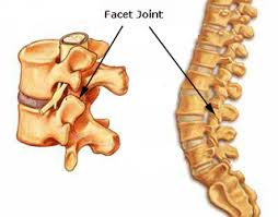 Whats A Facet Facet Joint Syndrome And Chiropractic Treatment Milton Keynes