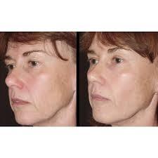 radio frequency skin tightening facial
