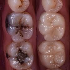 Pin de Carlos Augusto Barron Guevara en Work   Cepillado dental,  Odontología, Salud dental