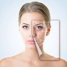 Acne behandeling - wat te doen tegen acne?