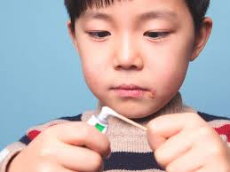lysine for cold sores treatment risks