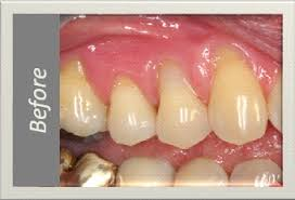 gum graft surgery pictures