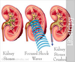 Image result for kidney stone eswl treatment