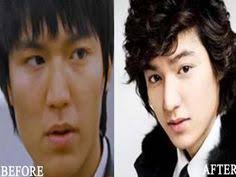 makeup korean male actors without plastic surgery lee min ho plastic surgery before and after photo