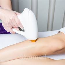 this safe and painless hair removal method provides the most effective laser hair removal for 6 diffe skin types and for any body region