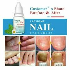 10ML Fungal Nail Treatment Highly Effective Kill Nail Fungus For Best  Result ** | eBay