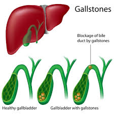 gallbladder stones symptoms causes