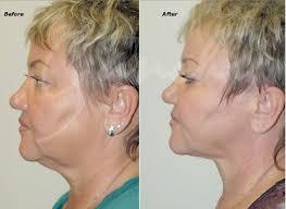 non invasive neck tightening procedures