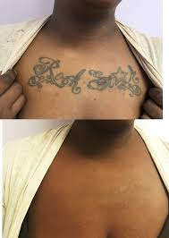 dermaflage tattoo cover up tattoo coverup tattoo cover up
