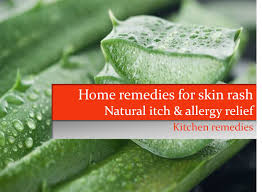7 Home remedies for skin rash | Natural allergy & itch relief using ...
