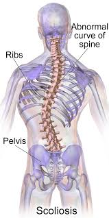 Scoliosis Chart Scoliosis Curvature Of The Spine Runnerclick