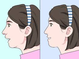 How To Fix An Overbite 9 Steps With Pictures Wikihow