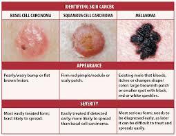 Mole Chart For Skin Cancer Skin Cancer And Kayak Fishing Kayak Fishing Focus