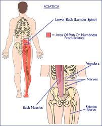 burning nerve endings for pain management