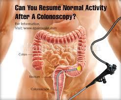 نتيجة بحث الصور عن Colonoscopy