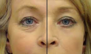 Image result for gelatin for wrinkles before and after