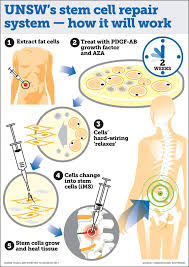 best ideas about stem cell research stem cells 17 best ideas about stem cell research stem cells stem cell therapy and cell video