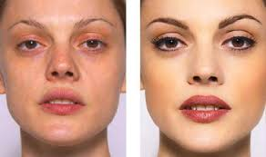what areas of the face are usually treated
