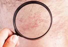 Itchy Rash? How to Tell If It's Eczema or Psoriasis – Health ...