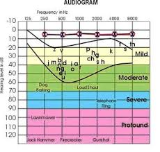 Audiogram Chart Blank An Audiogram Is A Chart Created By The Audiologist To
