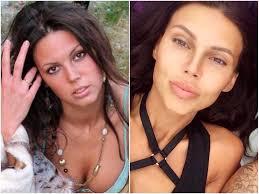 фото оксана самойлова до и после пластики
