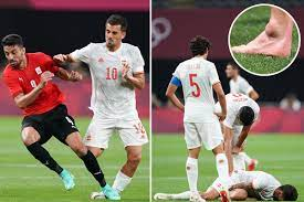 Ex-Arsenal star Dani Ceballos suffers ankle injury in horror tackle and  limps off injured for Spain in Tokyo 2020 clash