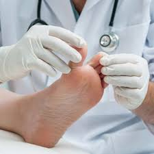 Athlete's Foot - What kills athlete's foot fungus?