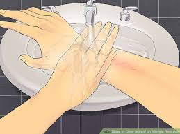 4 Ways to Clear Skin of an Allergic Reaction - wikiHow
