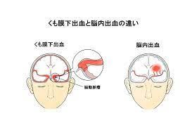 くも膜 下 出血 前兆 期間
