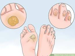 How to Treat a Corn or Callus (with Pictures) - wikiHow