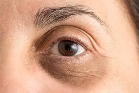 eye with puffy dark eyelids