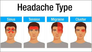 List Of Headache Chart Location Pictures And Headache Chart