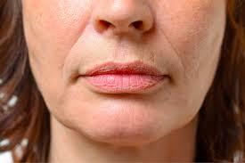 how to get rid of lip wrinkles vargas