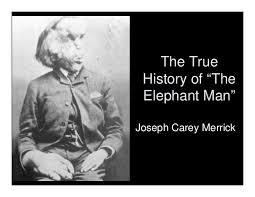 the elephant man. Beautiful The The True History Of U201cThe Elephant Manu201d Joseph Carey Merrick  Throughout Man H