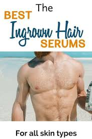do you suffer from ingrown hairs on your legs or area how about ingrown whiskers in your beard ingrown hairs can pop up anywhere