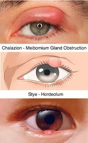 chalazion and stye hordeolum are infections of the edge of the eyelid