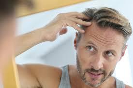 Znalezione obrazy dla zapytania receding hairline
