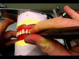 Teeth Setting Setting Upper Posterior Teeth