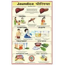 Jaundice Chart India Jaundice Chart Manufacturer Jaundice