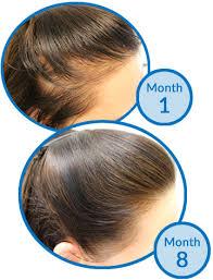 Male Pattern Baldness In Women Classy Why It's Female Pattern Hair Loss Not Female Pattern Baldness