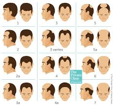 Assess Your Hair Loss With The Norwood Scale