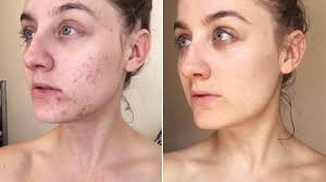 woman swaps cleanser for micellar water and transforms her skin allure before and after makeup asian reddit