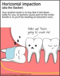SUGAR LOVE】Geek~ on Pinterest | Dental Art, Wisdom Tooth and Dentists via Relatably.com