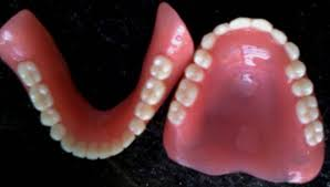 teeth setting image023 jpg