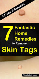 7 fantastic home remes to remove skin tags including skin tags removal at home quickly