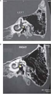 figure 6 oval window round distance yellow in oblique sagittal views a normal cochlea b dwarf