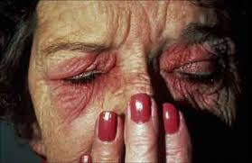 a patient with a history of chronic erythema itching and puffiness of the eyelids on patch testing the patient was found to be allergic to fingernail