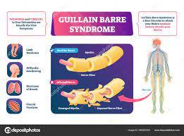 Guillain Barre syndrome vector ...