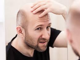 hair loss treatment cines for hair